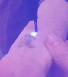 1064 tattoo6